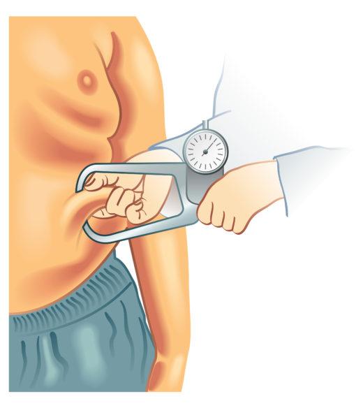 Coenzima Q10 e sindrome metabolica